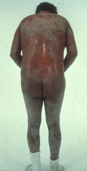 erythrodermic_psoriasis-108.jpg